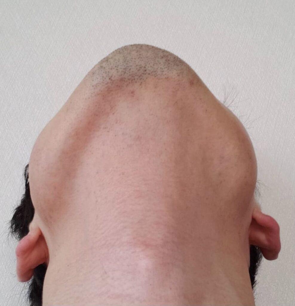 ONESLFメンズに人気のヒゲ脱毛の効果